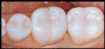 cerec porcelain crowns coquitlam