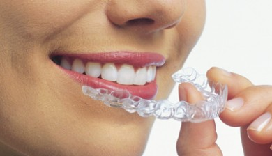 invisalign evening coquitlam bc